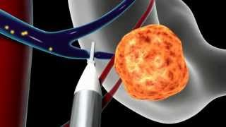 Overview of Minimally Invasive Parathyroid Surgery | CENTER for Advanced Parathyroid Surgery