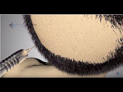 Die Maske für das Haar mit dem Ingwer für den Haarwuchs die Rezensionen