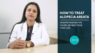 Alopecia Areata - Symptoms, Causes And Regrowth Treatments