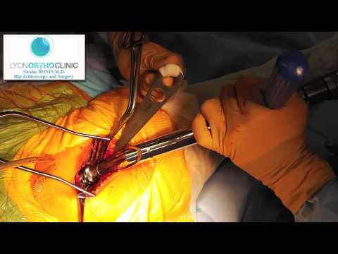Almag-01 Les rappels à la varicosité