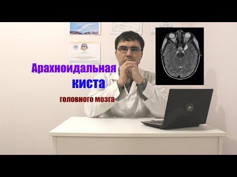 Причина заболевания гипертонией