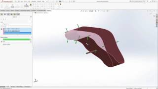 Webinar : HFWorks SolidWorks Simulation of a Microwave Ablation Antenna for Snoring Therapy