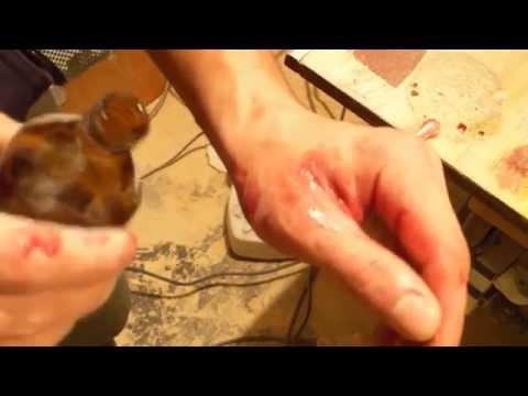 Симптомы гепатита с лечиться