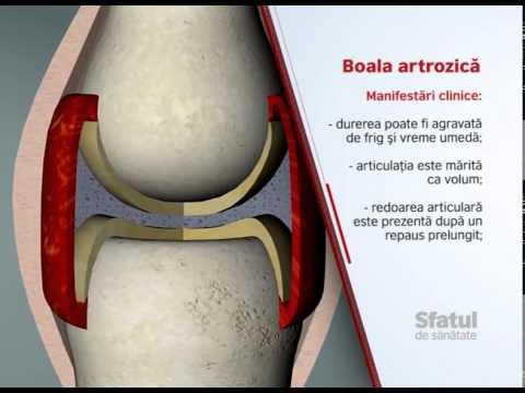 Unguent pentru articulații și ligamente și cartilaj