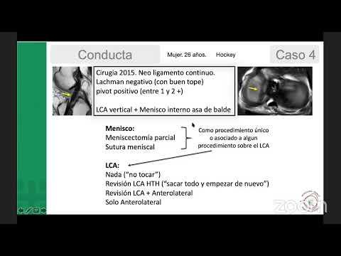 Artroza cubică a articulației cotului