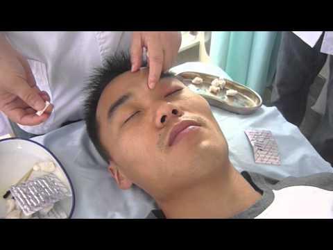 Utile se massaggio prostatico con adenoma prostatico