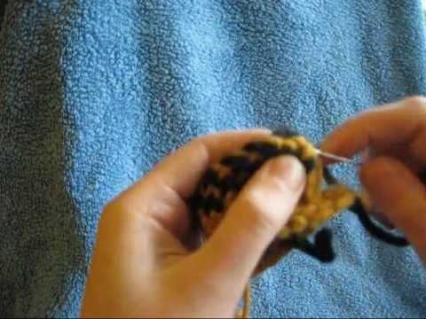 Die Behandlung bei der Abtrennung die Nägel