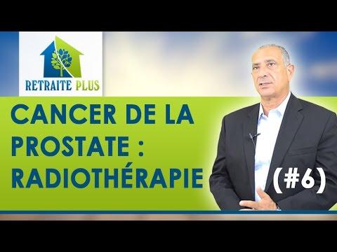 Les médicaments de la prostate à un stade précoce