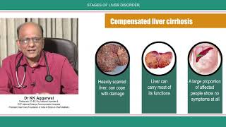 Stages of Liver Disorder || Liver Disease Symptoms || Liver Disease Signs and Symptoms