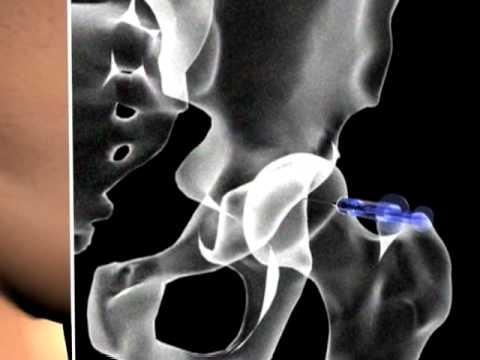 Neuritis de los síntomas y el tratamiento del codo