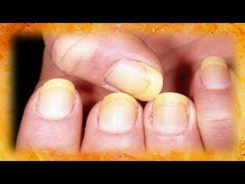 El melanoma de la uña el tratamiento