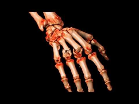 Sfaturi pentru tratamentul articulațiilor dureroase