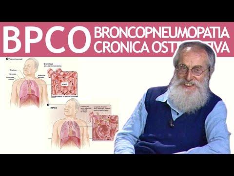 Il costo di radioterapia per il cancro alla prostata