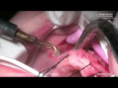Piezosurgery - Distraction Osteogenesis (Whole Maxilla)