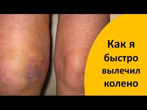 Как быстро вылечить ушиб колена