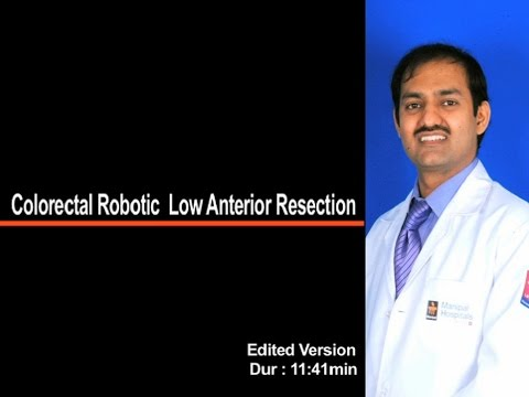 Colorectal Robotic Low Anterior Resection Edited