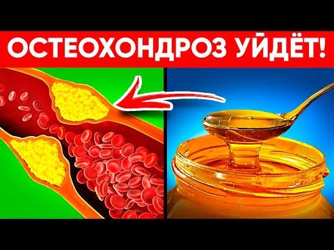 Остеохондроз Пропал За Ночь! Это Лекарство Может Сделать Каждый! (Невероятный Эффект!)