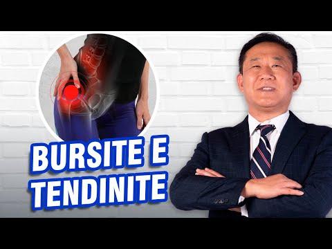 Sinovita exudativ proliferativă a tratamentului articulațiilor genunchiului
