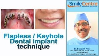 Flapless / Keyhole Dental implant technique - Video