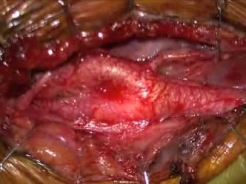 Vene varicose 2 trattamento di gradi