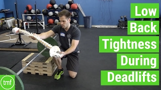 Low Back Tightness During Deadlifts | Ep 111 | Movement Fix Monday | Dr. Ryan DeBell
