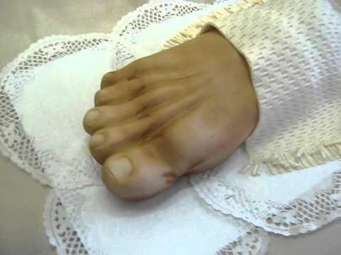 Láb artrózis zselatin kezelés