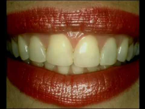 Lente Odontologica Faceta Laminada Precos Yahoo Respostas