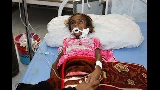 Millions Of Yemenis STARVING To Déath From US-Backed Saüdi Blockade