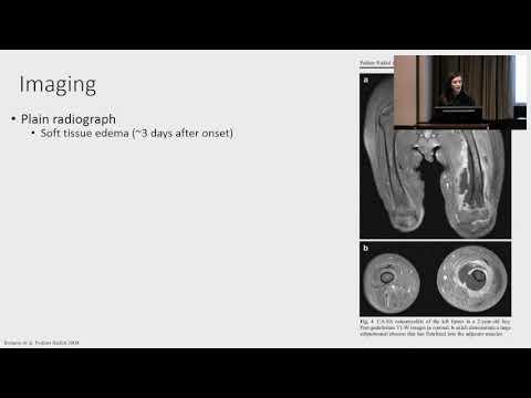 Standard a csípőízületi gyulladás kezelésére