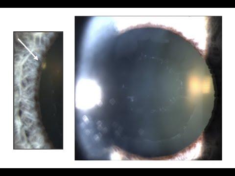 Tratament spa al organelor de vedere