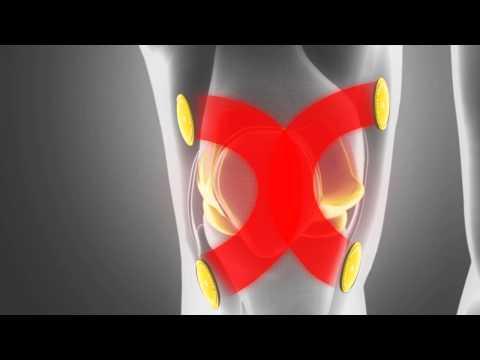 Cancer de la prostate t3bn0m0