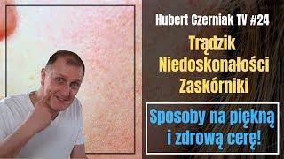 Hubert Czerniak TV #24 Trądzik / Wypryski / Zaskórniki / Skuteczne sposoby na piękną i zdrową skórę