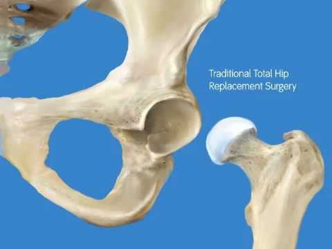 Ricarica per il video osteocondrosi cervicale e toracico on-line