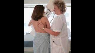 Get Screened: Why Women Should Have Annual Mammograms Starting at Age 40