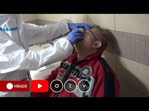 Milyen gyógyszerek segítenek a prosztatagyulladás kezelésében