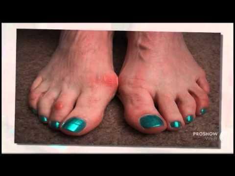 Исправление косточки на пальце ноги
