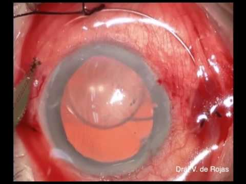 Posterior fixation of an Iris–claw IOL combined with pupilloplasty or iris cerclage suture