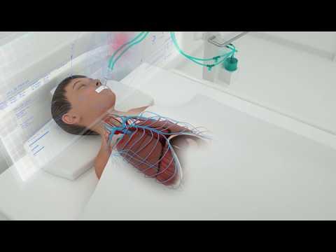 mp4 Medical Ventilator, download Medical Ventilator video klip Medical Ventilator