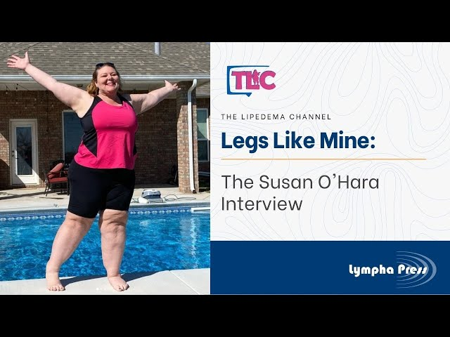 Legs Like Mine: The Susan O'Hara Interview