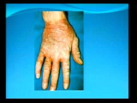 Atopitchesky la dermatite les enfants le forum