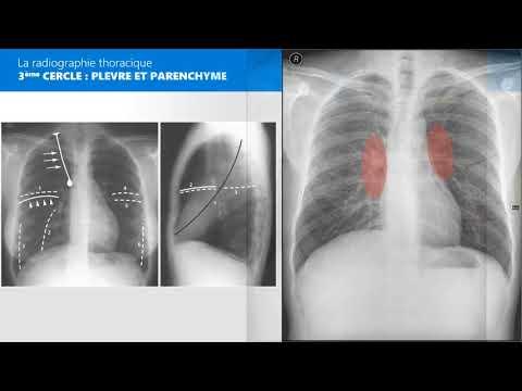 Les maladies cardiaques dans lhypertension