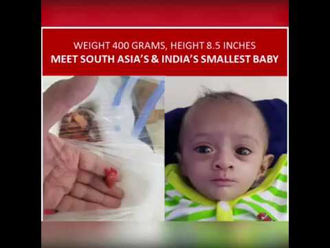 Meet Manushi, India's & South Asia's smallest / Tiniest premature baby  - weighing only 400 gms