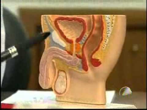 Tratamento de cancro da próstata na fase 3 russo
