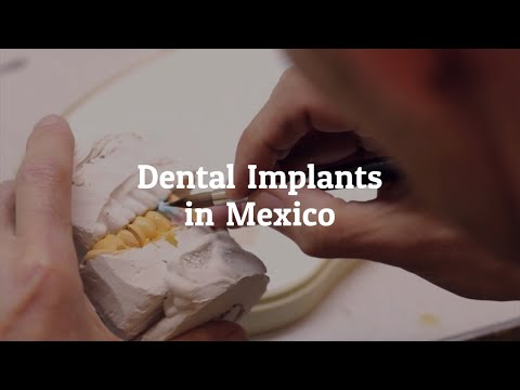 Get the Best Dental Implants in Mexico