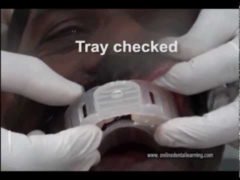 Implant Impression Methods: Open and Closed Tray