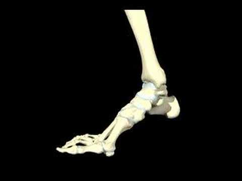What is Tibialis Dysfunction?