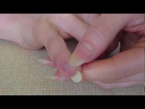 Infezione e fungo di unghia