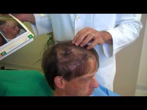 Hair Transplantation for Burn Scar