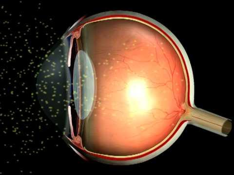 Клиника коррекция зрения в кемерово