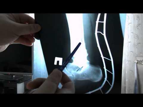 Двухлодыжечный перелом снимки